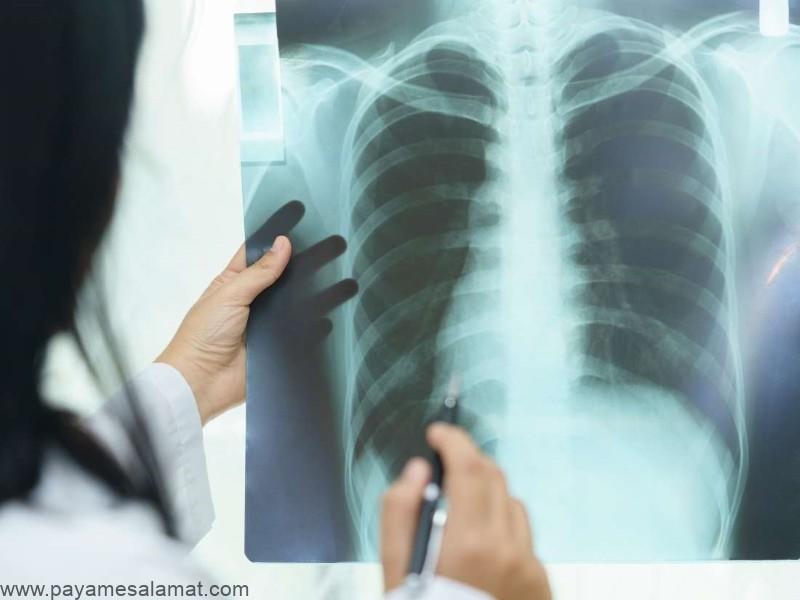 زجر تنفسی (ARDS) چیست و چه علائمی دارد؟